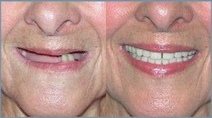 Dental Implants - Cheltenham