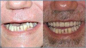 Dental Implants - Milton Keynes